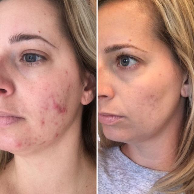 Acne before and after with Klō Organic Beauty