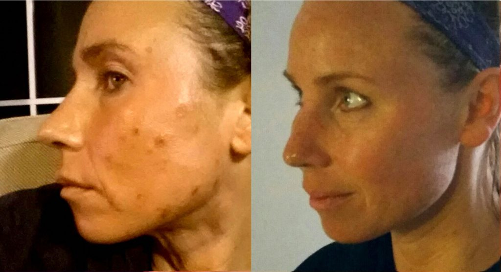 Before and after picture of acne